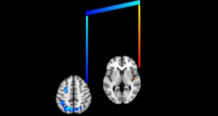 Rewire Your Brain with Music