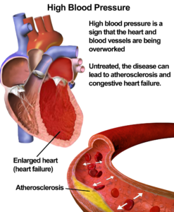 Risks of high blood pressure